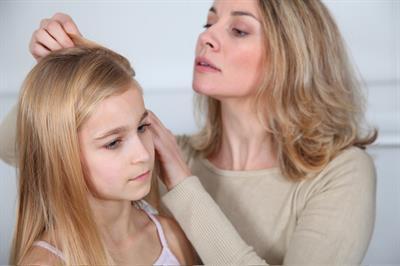 Saç Biti Tedavisinde Doğal Yöntemler Alternatif Terapi
