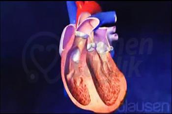Kalp Kapakları Alternatif Terapi